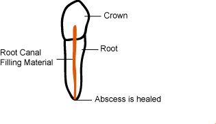 abscess healed